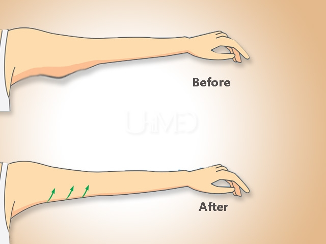 Arm lift after-weight loss surgery