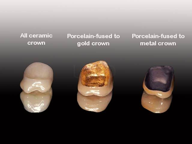 Kinds of dental crowns in Thailand