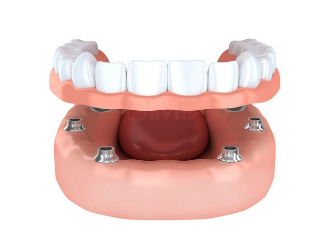 Snap on dentures pros and cons