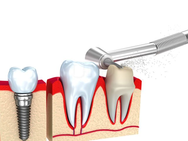 Tooth preparation for dental crown
