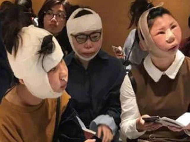 Chinese women detained at airport after cosmetic surgery