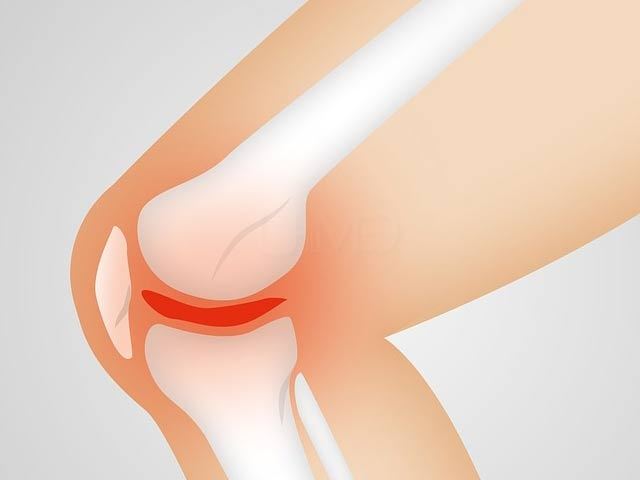 Surgery for knee pain