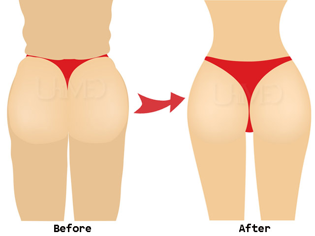 Butt Augmentation Abroad