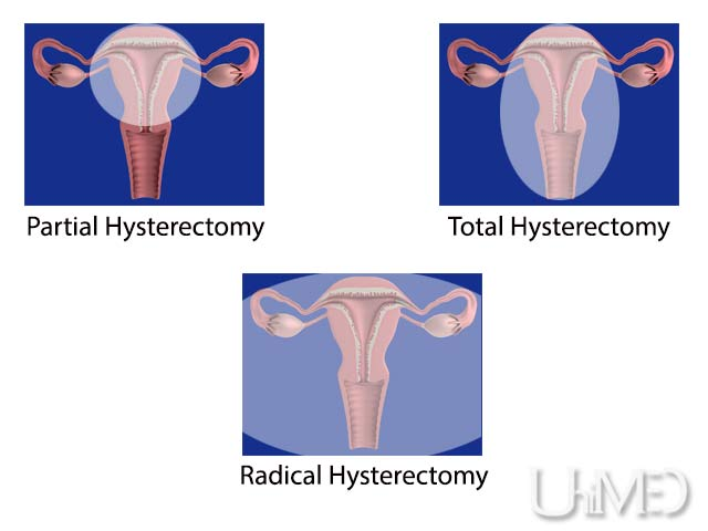 Affordable hysterectomy abroad
